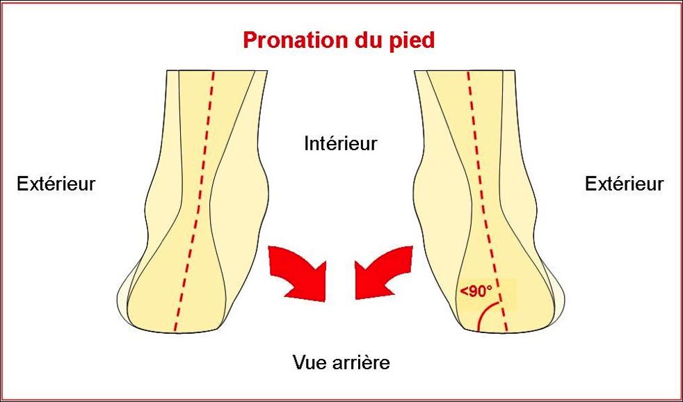 pronation pied