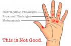 Guérir et prévenir les déchirures aux mains en CrossFit ®* !